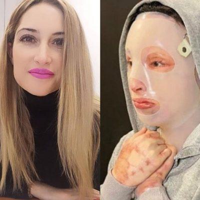 Επίθεση με βιτριόλι: Συγκλονίζει η Ιωάννα Παλιοσπύρου – Δείτε τι αποκάλυψε