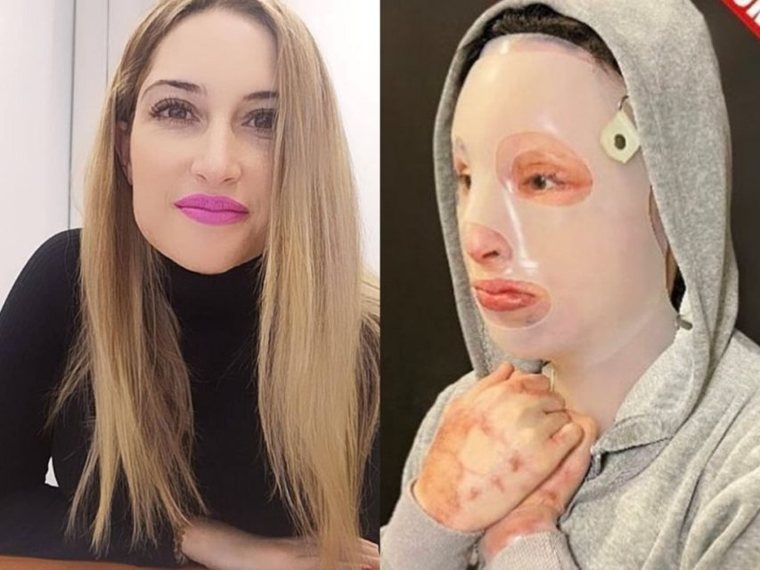 Επίθεση με βιτριόλι - Ιωάννα Παλιοσπύρου